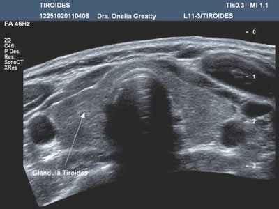 Ultrasonido de tiroides