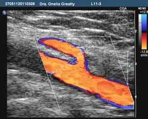 Doppler arterial